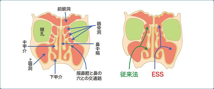内視鏡下鼻内副鼻腔炎手術(ESS)