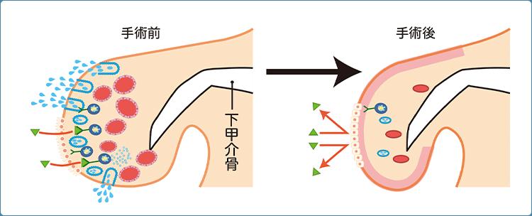 レーザー治療「鼻腔レーザー照射術(下甲介粘膜焼灼術)」